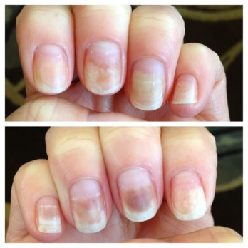 Chemo nails. Gross. (March 2013)